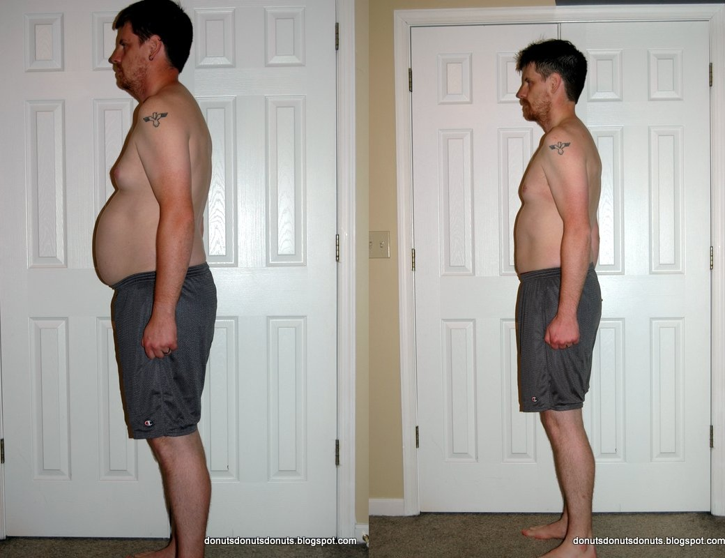 Bryan Before-After Side